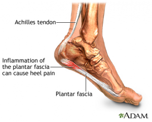 plantar facities