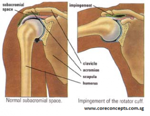 shoulder impingement 3